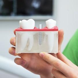 dantu-implantacija2